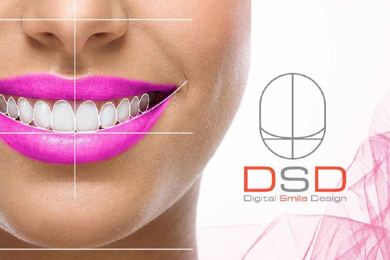 DSD, Diseño Digital de Sonrisas.