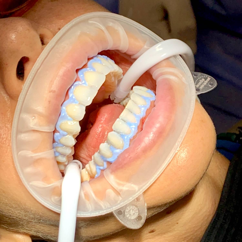Blanqueamientos dentales en clínica o profesional
