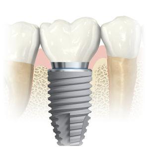 Implantes dentales y su resultado